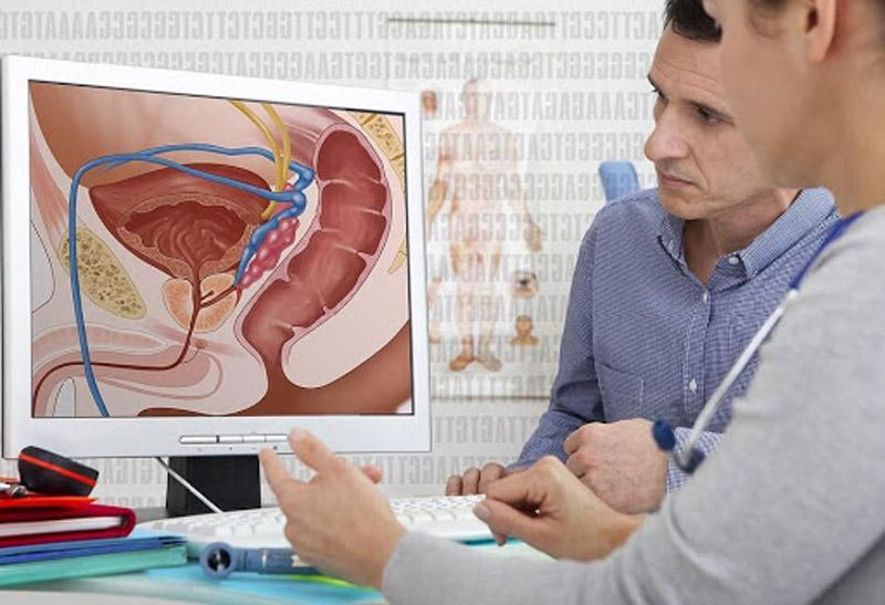 چربی شکمی؛ عامل سرطان پروستات